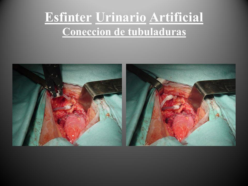 Esfinter Urinario Artificial Coneccion de tubuladuras