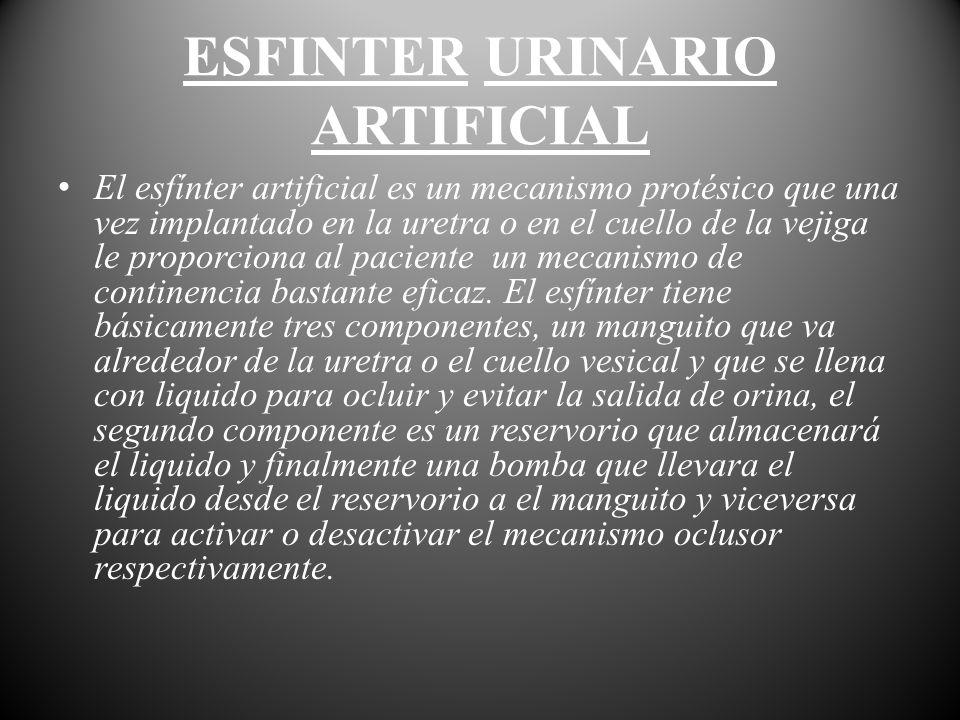 El esfínter artificial es un mecanismo protésico que una vez implantado en la uretra o en el cuello de la vejiga le proporciona al paciente un mecanis