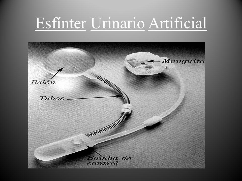 ESFINTER URINARIO ARTIFICIAL IMPLANTACION: El lugar ideal de implantación del manguito es el cuello vesical por su irrigación vascular.