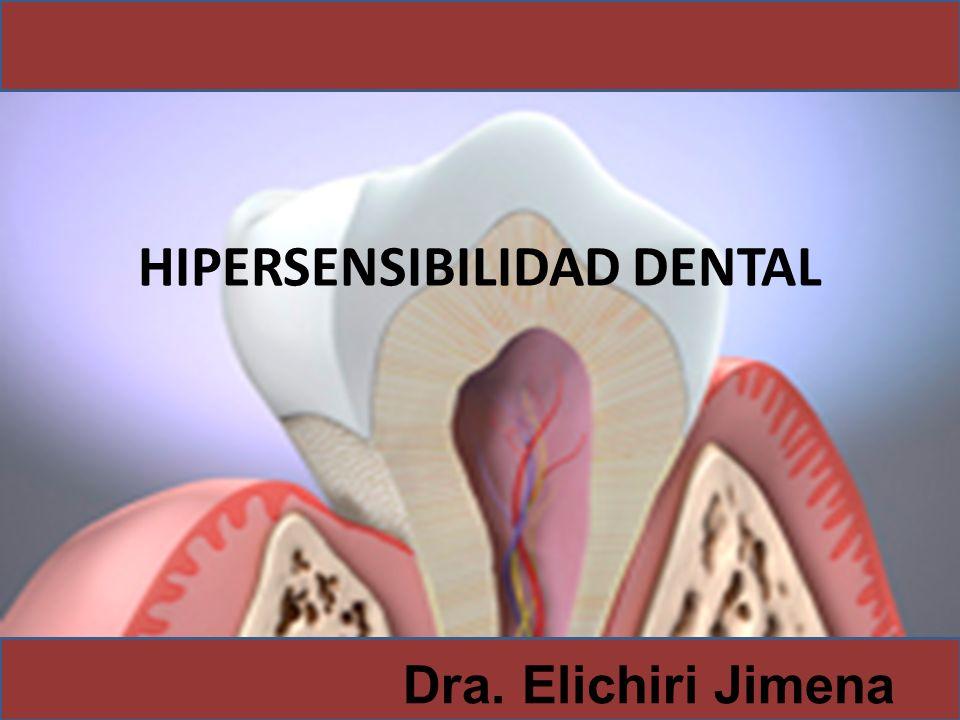 HIPERSENSIBILIDAD DENTAL Dra. Elichiri Jimena