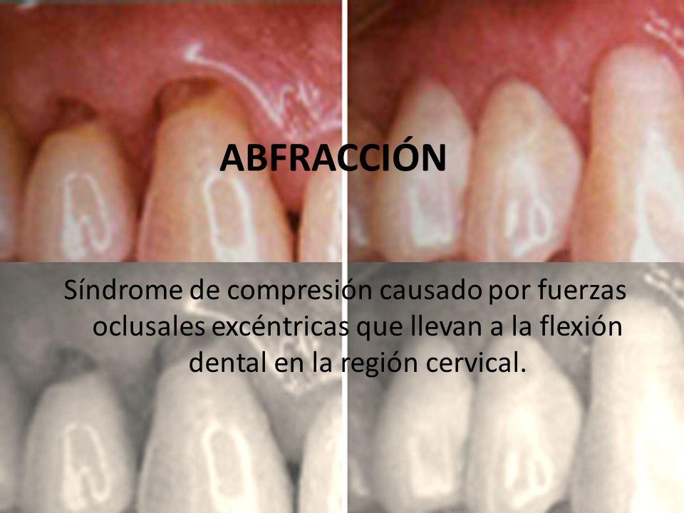 Síndrome de compresión causado por fuerzas oclusales excéntricas que llevan a la flexión dental en la región cervical. ABFRACCIÓN