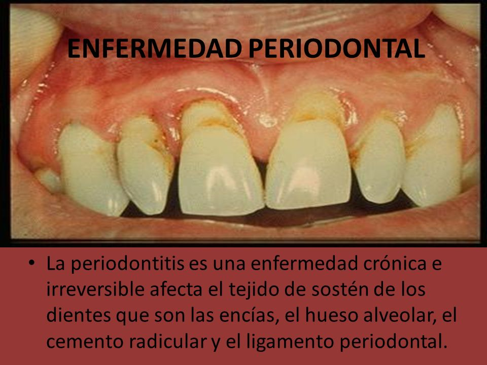 ENFERMEDAD PERIODONTAL La periodontitis es una enfermedad crónica e irreversible afecta el tejido de sostén de los dientes que son las encías, el hues