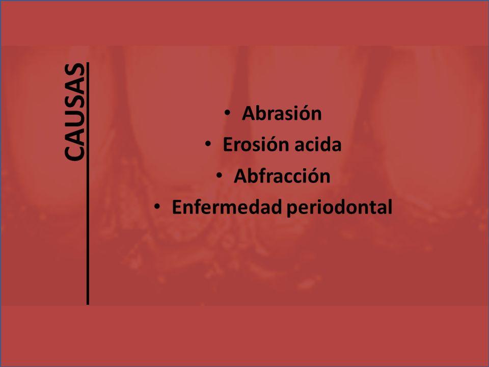Abrasión Erosión acida Abfracción Enfermedad periodontal CAUSAS