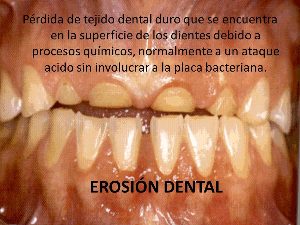 EROSIÓN DENTAL Pérdida de tejido dental duro que se encuentra en la superficie de los dientes debido a procesos químicos, normalmente a un ataque acid