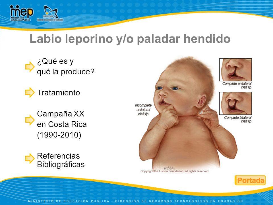 ¿Qué es y qué la produce? Tratamiento Campaña XX en Costa Rica (1990-2010) Referencias Bibliográficas Labio leporino y/o paladar hendido