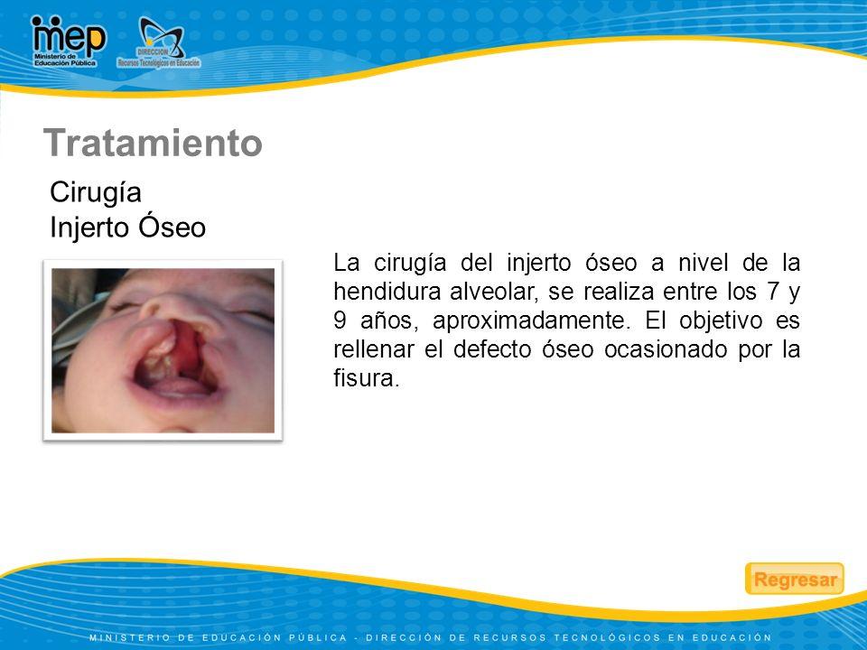 La limpieza dental debe empezar desde que el niño nace.