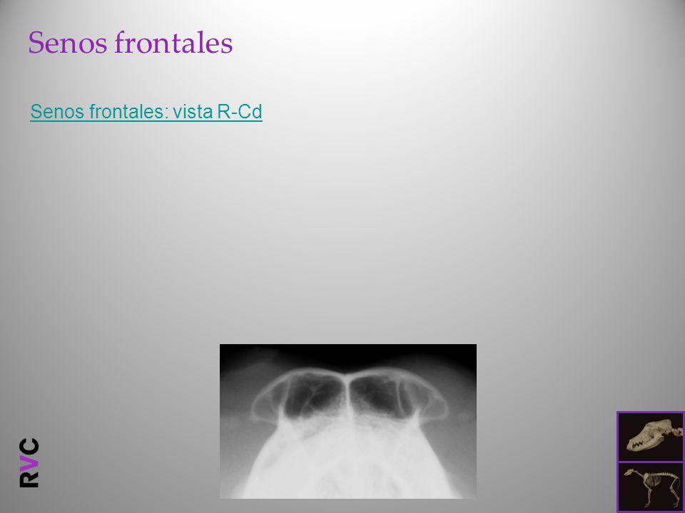 Senos frontales Senos frontales: vista R-Cd