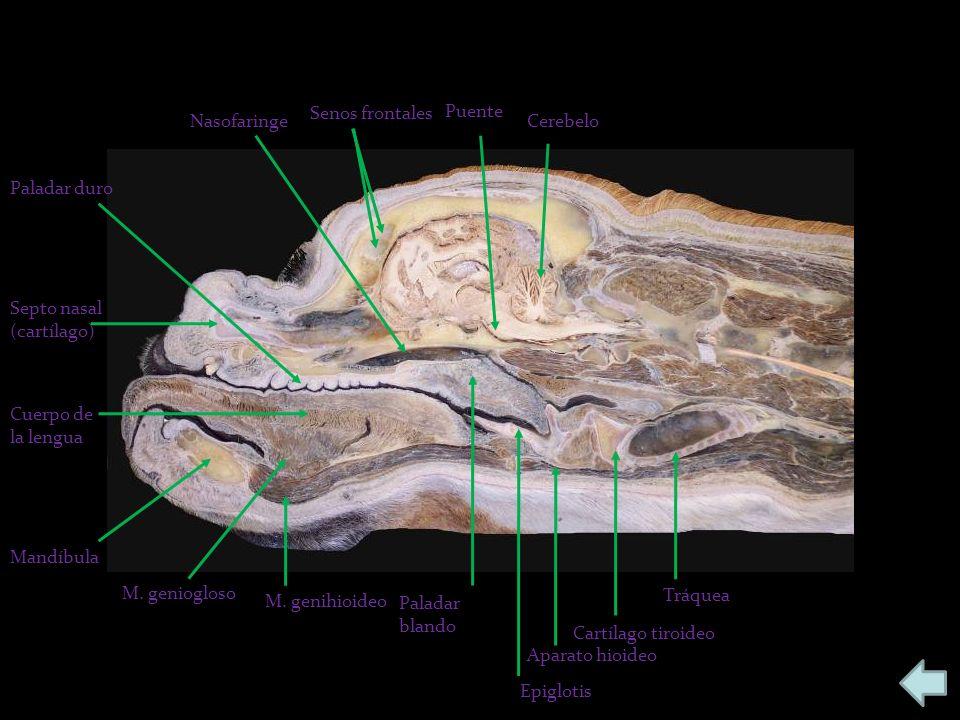 Cerebelo Puente Senos frontales Nasofaringe Paladar duro Septo nasal (cartílago) Cuerpo de la lengua Mandíbula M. geniogloso M. genihioideo Paladar bl