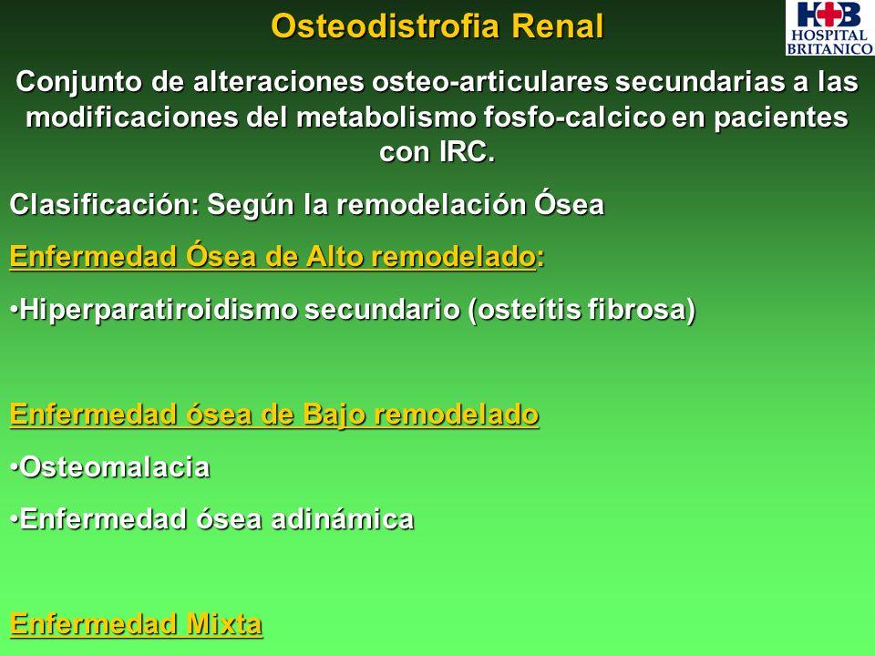 Osteodistrofia Renal Conjunto de alteraciones osteo-articulares secundarias a las modificaciones del metabolismo fosfo-calcico en pacientes con IRC. C