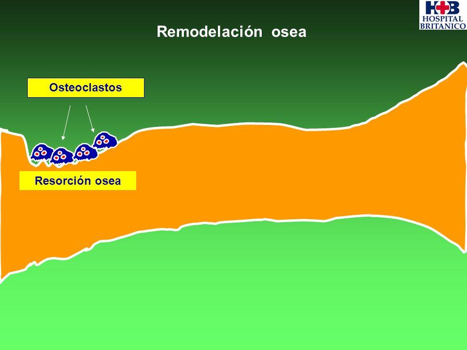 Remodelación osea Osteoclastos Resorción osea