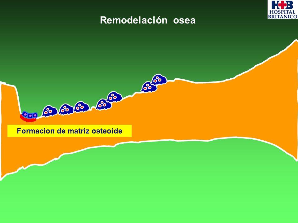 Remodelación osea Formacion de matriz osteoide