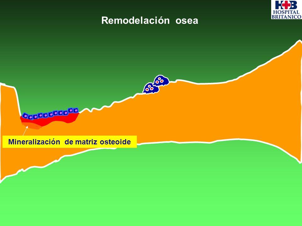 Trabécula óssea Remodelación osea Mineralización de matriz osteoide