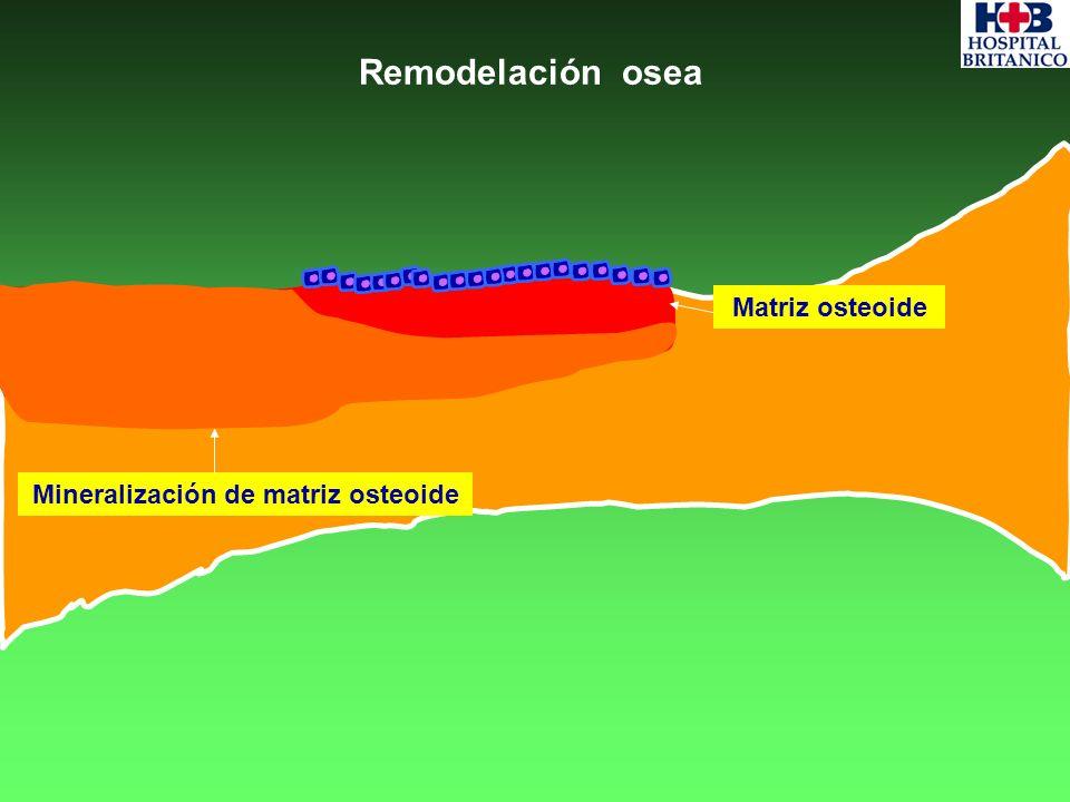 Remodelación osea Matriz osteoide Mineralización de matriz osteoide