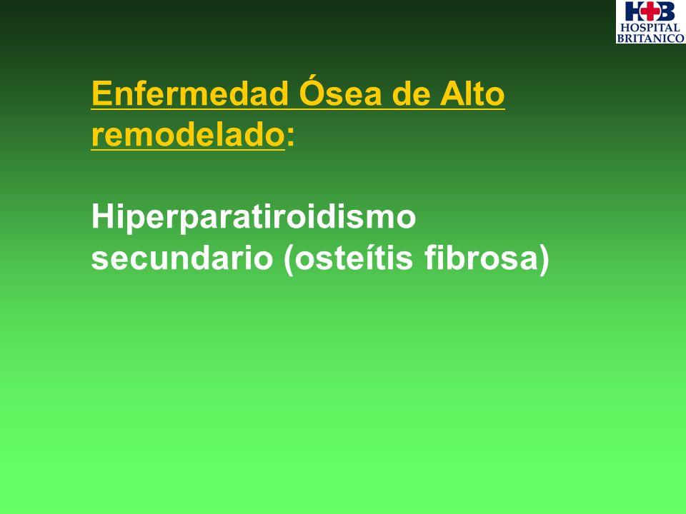 Enfermedad Ósea de Alto remodelado: Hiperparatiroidismo secundario (osteítis fibrosa)