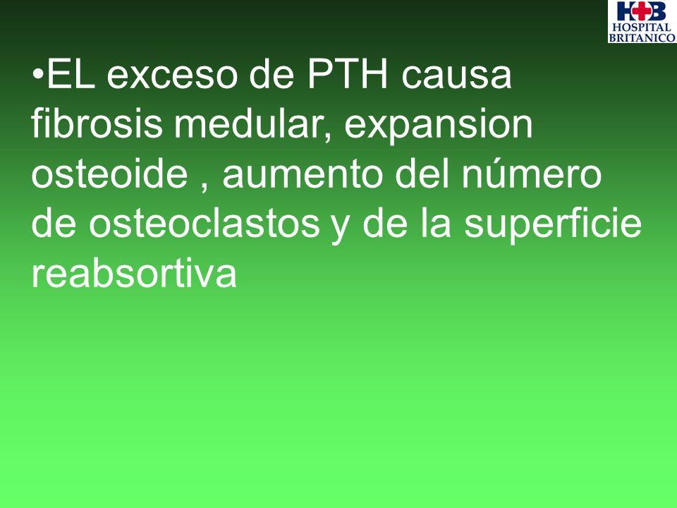 EL exceso de PTH causa fibrosis medular, expansion osteoide, aumento del número de osteoclastos y de la superficie reabsortiva