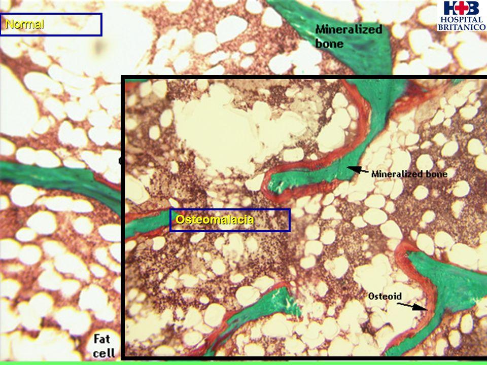 Normal Osteomalacia
