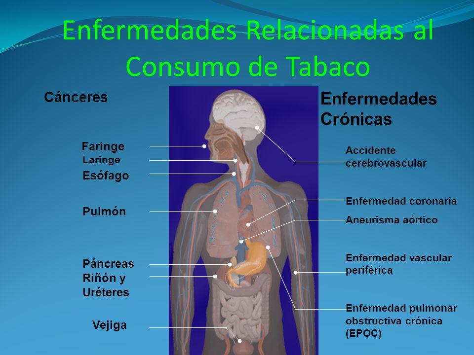 Cánceres Pulmón Laringe Esófago Vejiga Riñón y Uréteres Páncreas Faringe Accidente cerebrovascular Enfermedad coronaria Aneurisma aórtico Enfermedad vascular periférica Enfermedad pulmonar obstructiva crónica (EPOC) Enfermedades Crónicas Enfermedades Relacionadas al Consumo de Tabaco