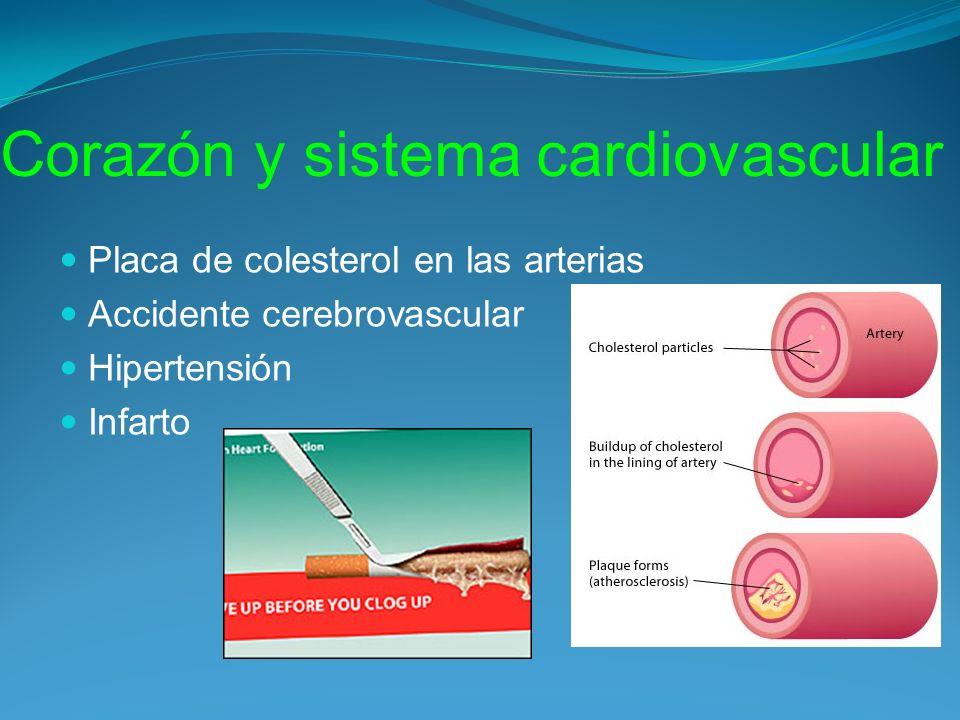 Corazón y sistema cardiovascular Placa de colesterol en las arterias Accidente cerebrovascular Hipertensión Infarto