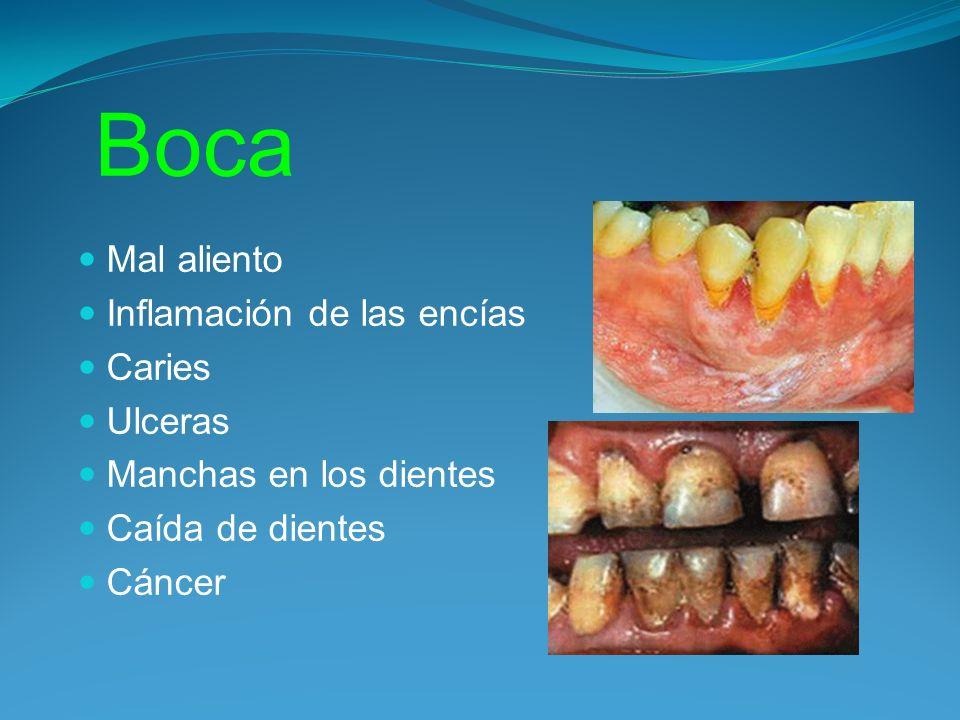 Boca Mal aliento Inflamación de las encías Caries Ulceras Manchas en los dientes Caída de dientes Cáncer
