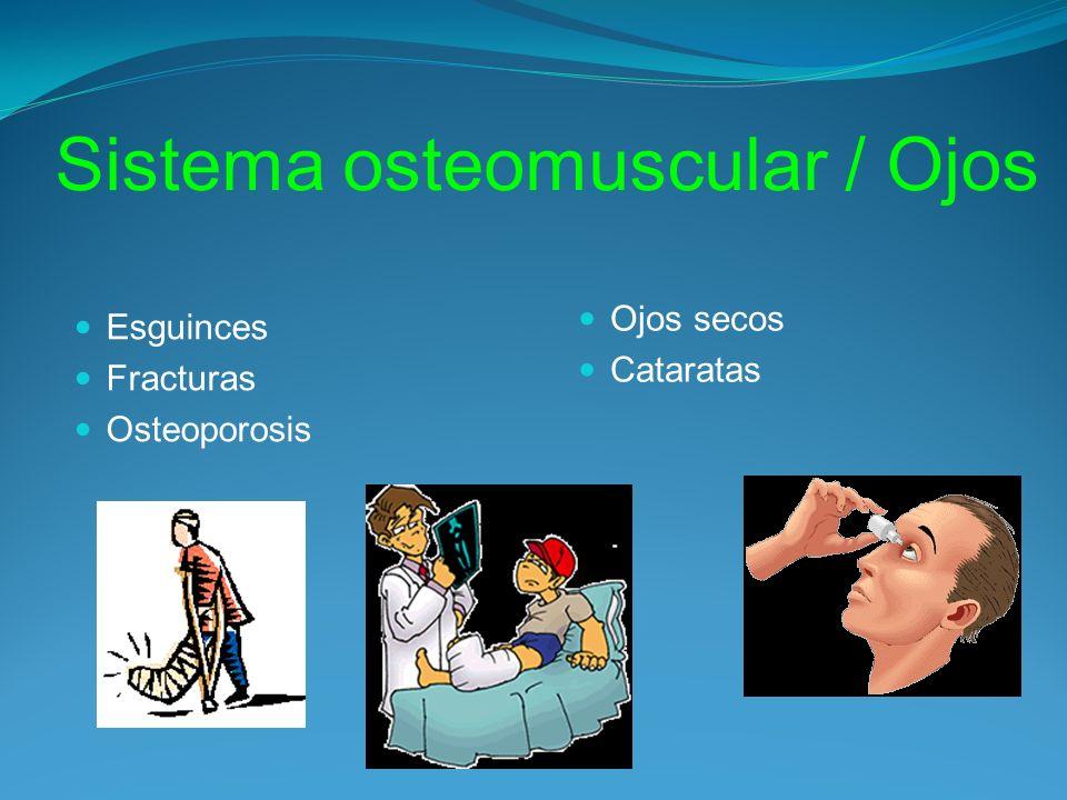 Sistema osteomuscular / Ojos Esguinces Fracturas Osteoporosis Ojos secos Cataratas