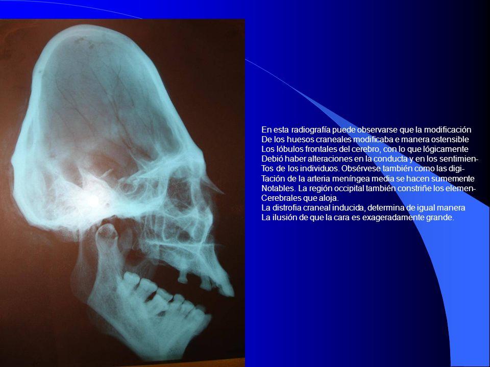 En esta radiografía puede observarse que la modificación De los huesos craneales modificaba e manera ostensible Los lóbulos frontales del cerebro, con