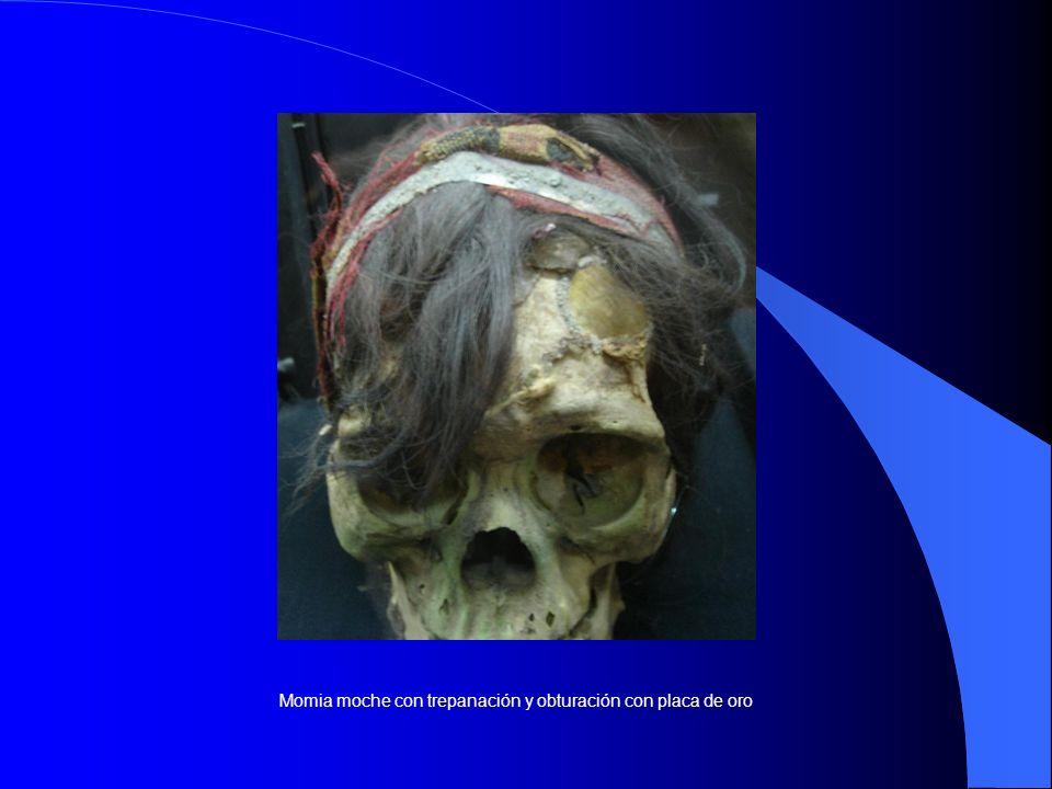 Momia moche con trepanación y obturación con placa de oro