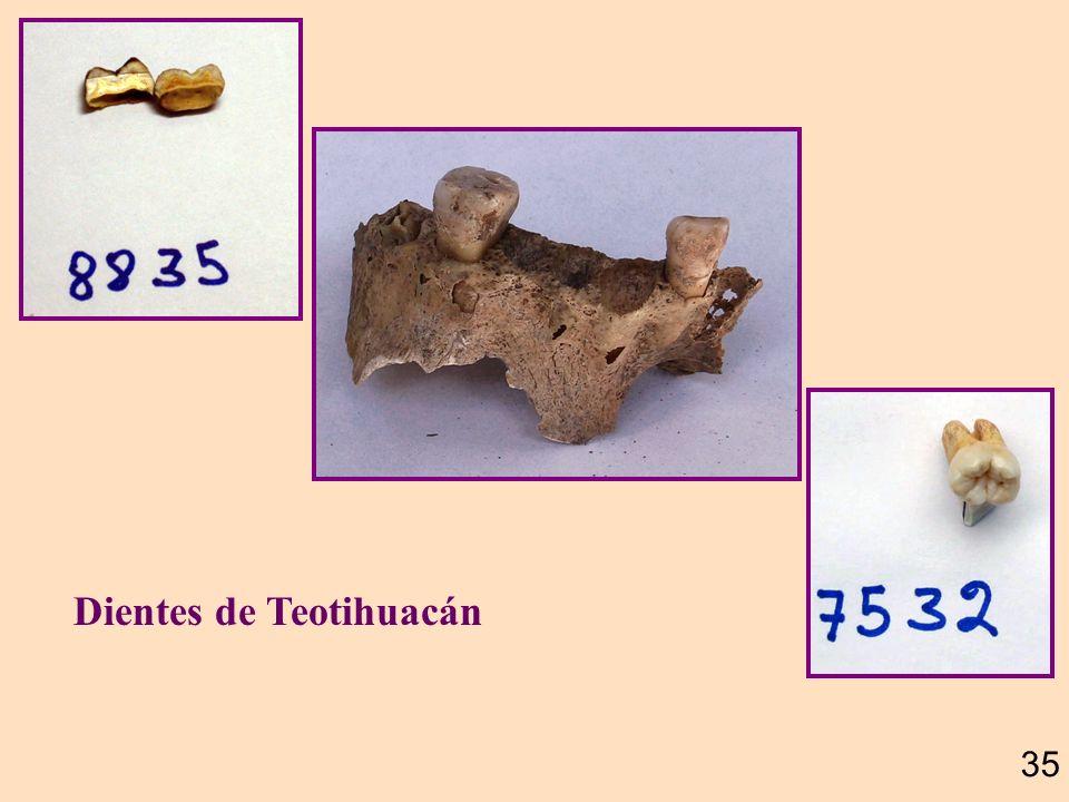 El esmalte de los dientes, la sustancia mas dura de nuestro cuerpo, es una envoltura muy resistente de la parte mas suave llamada dentina. Ambos mater