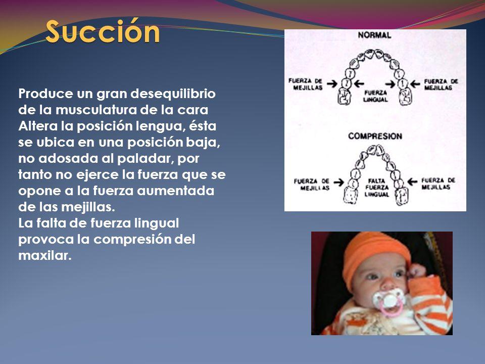 Succión Produce un gran desequilibrio de la musculatura de la cara Altera la posición lengua, ésta se ubica en una posición baja, no adosada al paladar, por tanto no ejerce la fuerza que se opone a la fuerza aumentada de las mejillas.