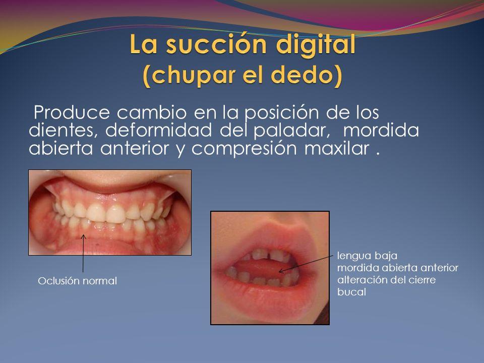 Produce cambio en la posición de los dientes, deformidad del paladar, mordida abierta anterior y compresión maxilar.