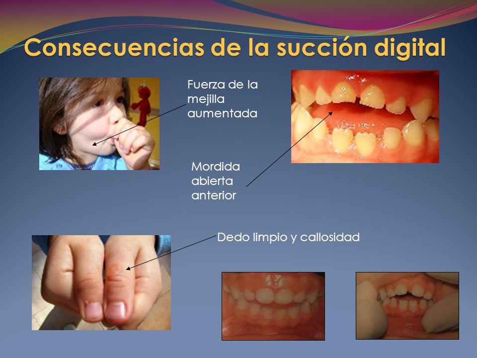 Fuerza de la mejilla aumentada Dedo limpio y callosidad Mordida abierta anterior Consecuencias de la succión digital