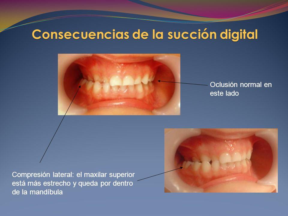 Compresión lateral: el maxilar superior está más estrecho y queda por dentro de la mandíbula Oclusión normal en este lado Consecuencias de la succión digital