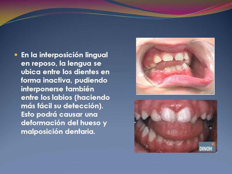 En la interposición lingual en reposo, la lengua se ubica entre los dientes en forma inactiva, pudiendo interponerse también entre los labios (haciendo más fácil su detección).