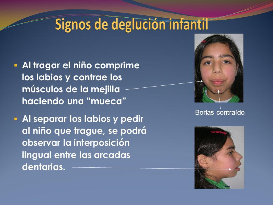 Al tragar el niño comprime los labios y contrae los músculos de la mejilla haciendo una mueca Al separar los labios y pedir al niño que trague, se podrá observar la interposición lingual entre las arcadas dentarias.