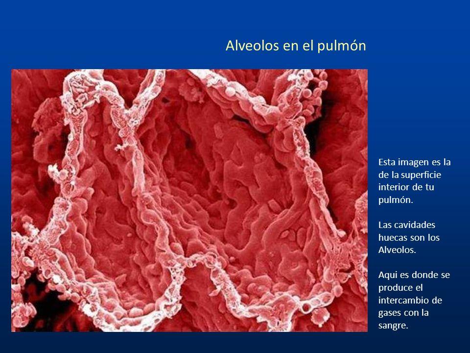 Coágulo de sangre ¿Recuerdan la bella imagen uniforme de los glóbulos rojos que te mostré al inicio? Bien, aquí vemos como lucen esas células cuando e