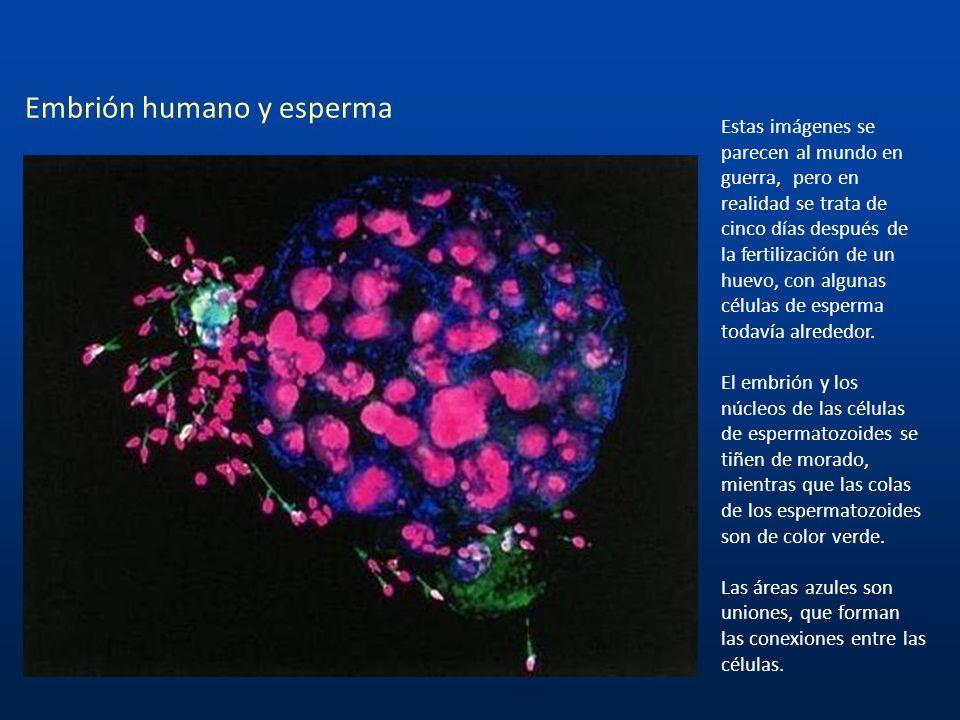 Esperma sobre la superficie de un óvulo humano Esta foto es un close up de varios espermatozoides tratando de fertilizar un Ovulo.