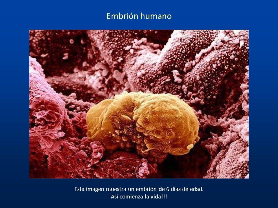 Embrión humano y esperma Estas imágenes se parecen al mundo en guerra, pero en realidad se trata de cinco días después de la fertilización de un huevo
