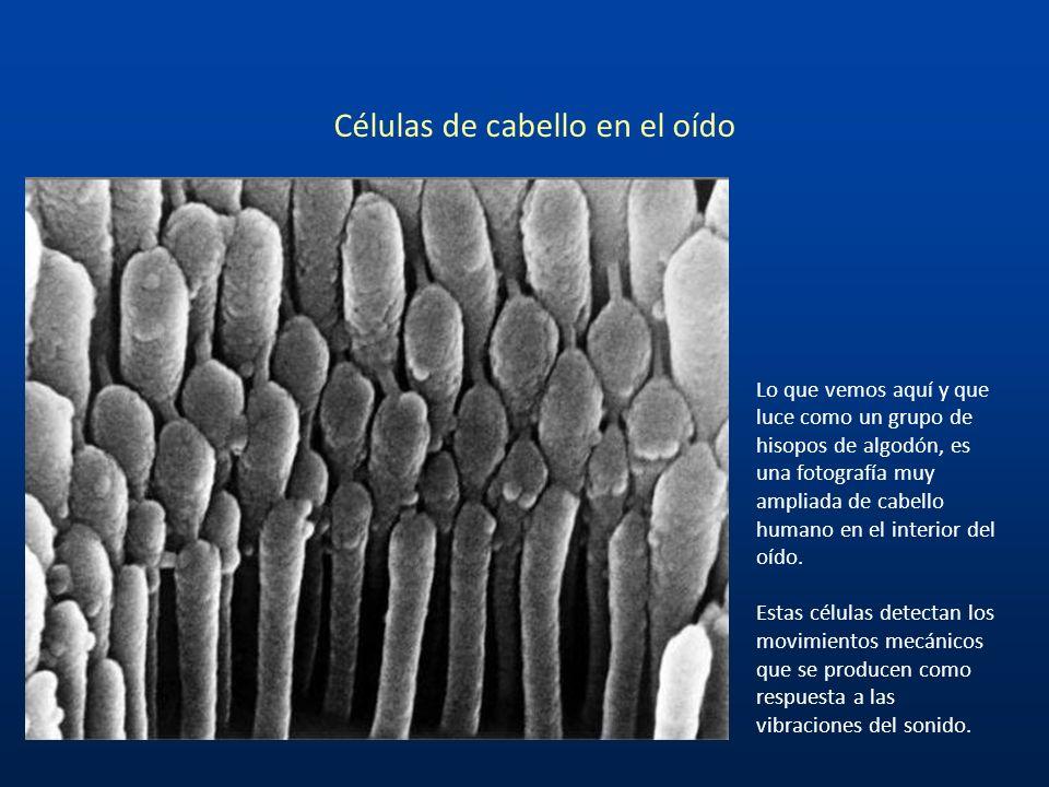 Estas son las Neuronas (células nerviosas) de Purkinje De los 100 millones de células nerviosas o neuronas en nuestro cerebro, las más grandes son las