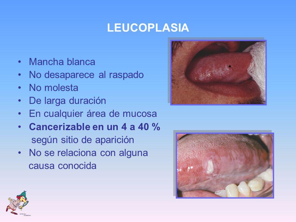LEUCOPLASIA Mancha blanca No desaparece al raspado No molesta De larga duración En cualquier área de mucosa Cancerizable en un 4 a 40 % según sitio de