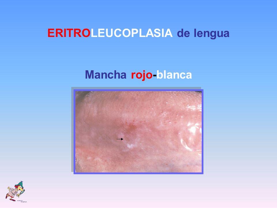 ERITROLEUCOPLASIA de lengua Mancha rojo-blanca