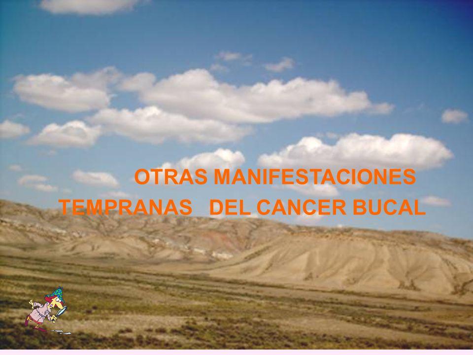 OTRAS MANIFESTACIONES TEMPRANAS DEL CANCER BUCAL