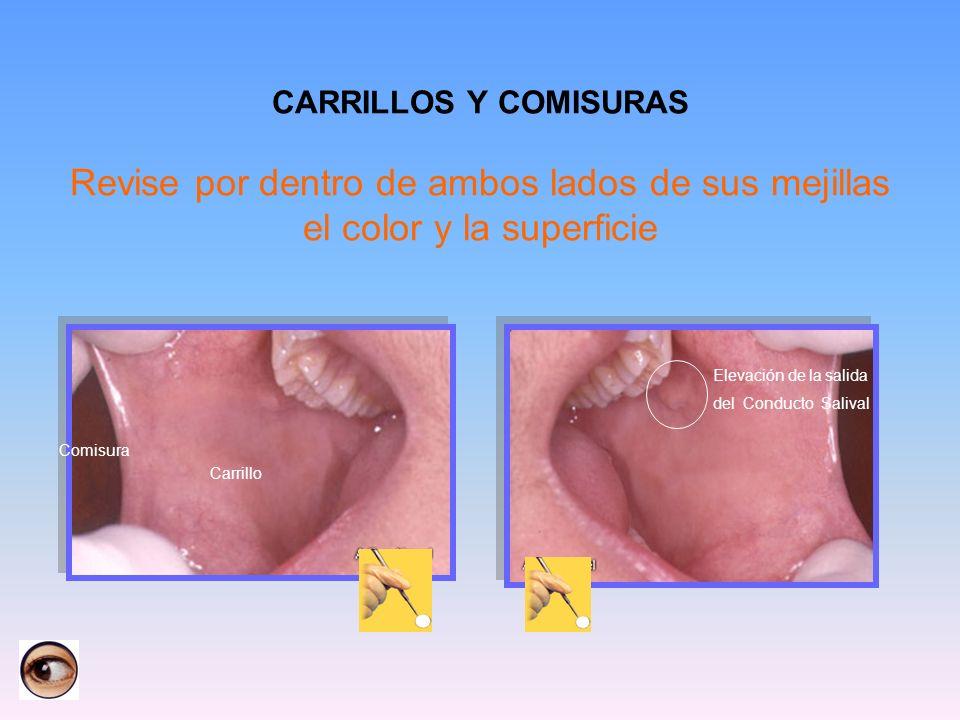 CARRILLOS Y COMISURAS Revise por dentro de ambos lados de sus mejillas el color y la superficie Comisura Carrillo Elevación de la salida del Conducto