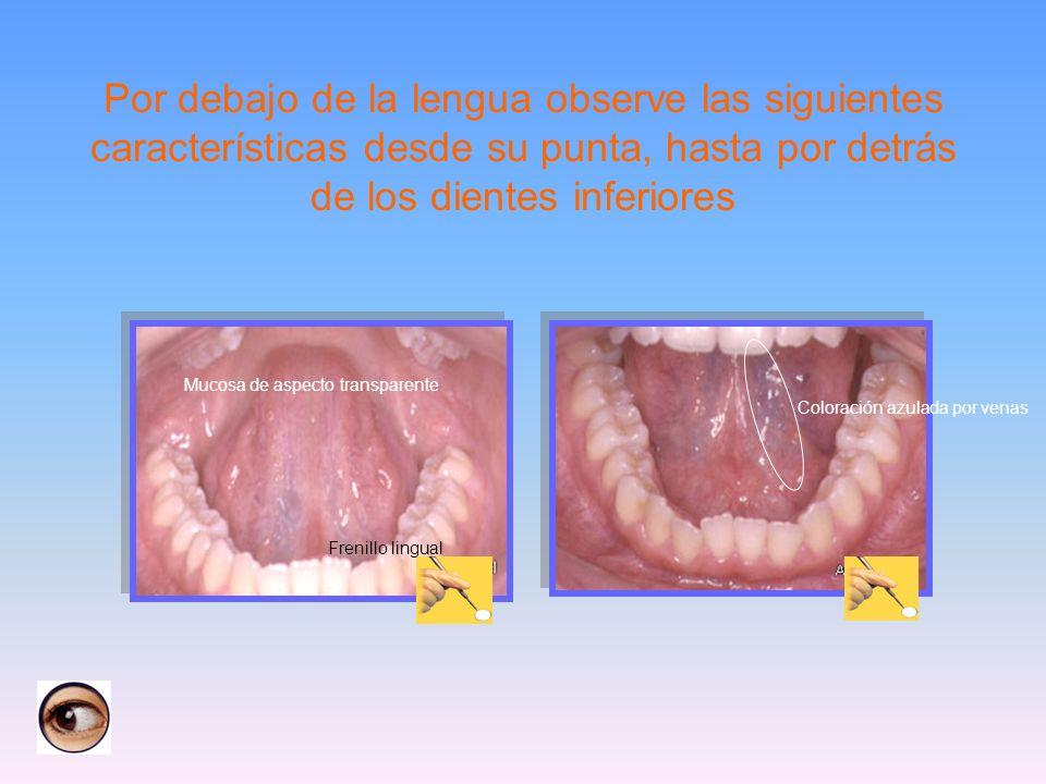 Por debajo de la lengua observe las siguientes características desde su punta, hasta por detrás de los dientes inferiores Coloración azulada por venas