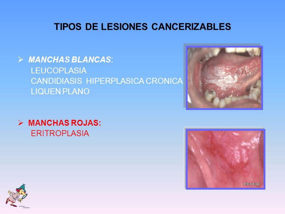 TIPOS DE LESIONES CANCERIZABLES MANCHAS BLANCAS : LEUCOPLASIA CANDIDIASIS HIPERPLASICA CRONICA LIQUEN PLANO MANCHAS ROJAS: ERITROPLASIA