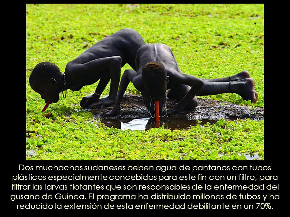 Dos muchachos sudaneses beben agua de pantanos con tubos plásticos especialmente concebidos para este fin con un filtro, para filtrar las larvas flotantes que son responsables de la enfermedad del gusano de Guinea.