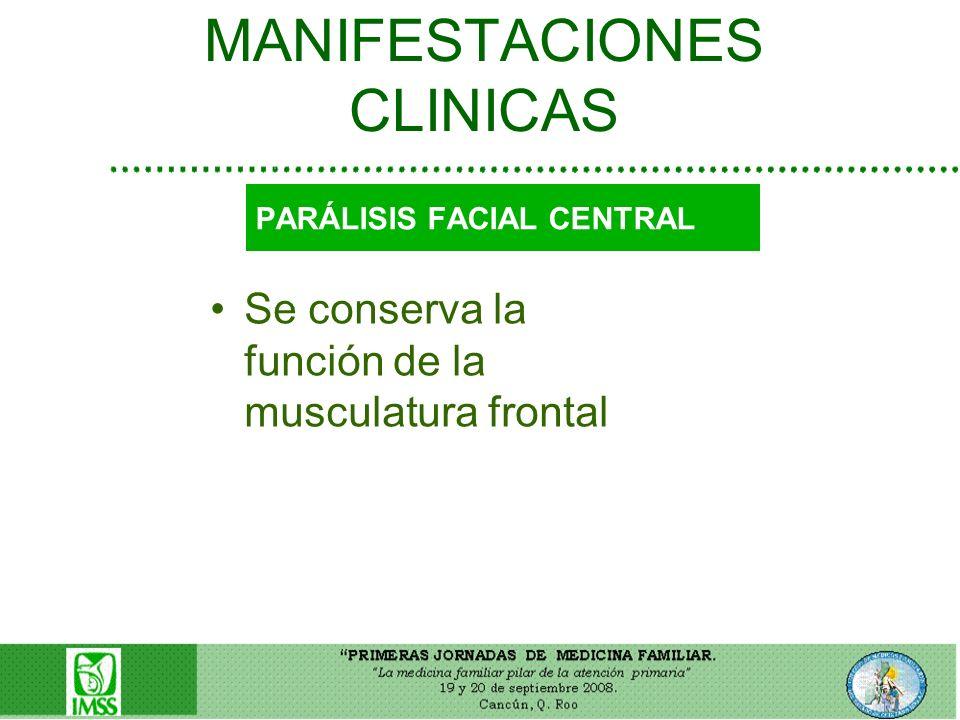 MANIFESTACIONES CLINICAS Se conserva la función de la musculatura frontal PARÁLISIS FACIAL CENTRAL