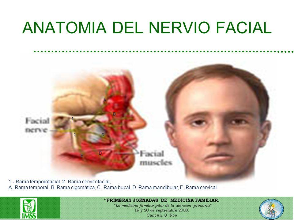 ANATOMIA DEL NERVIO FACIAL 1.- Rama temporofacial, 2. Rama cervicofacial, A. Rama temporal, B. Rama cigomática, C. Rama bucal, D. Rama mandibular, E.