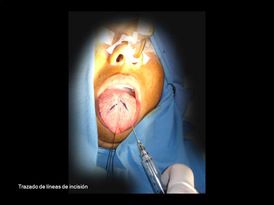 Trazado de líneas de incisión