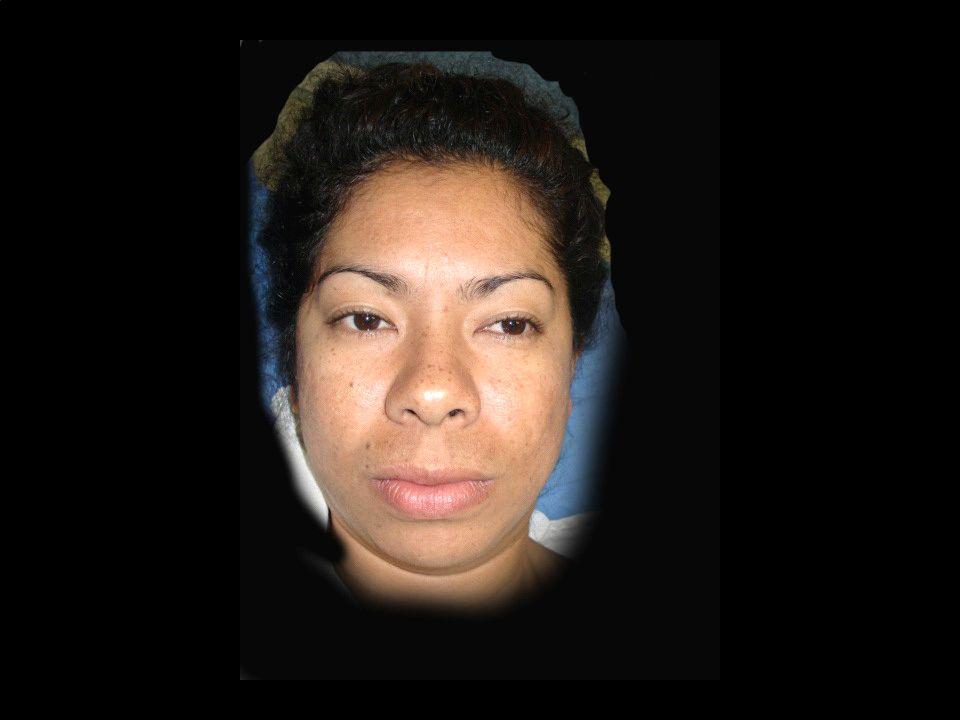 La glosectomía parcial basada en cefalometría ayuda Al Ortognapedista a realizar sus maniobras adecuadamente Ya que se elimina la fuerza disdóntica viciosa que compite con La aparatología ortognática-
