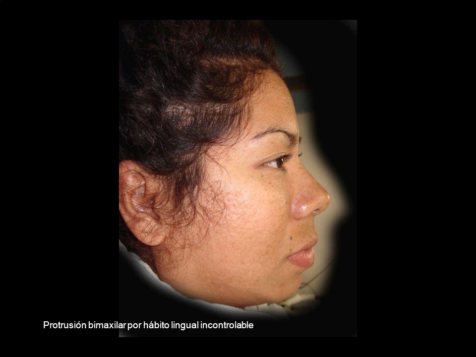 Protrusión bimaxilar por hábito lingual incontrolable