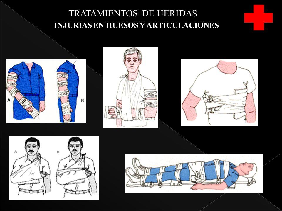 TRATAMIENTOS DE HERIDAS INJURIAS EN HUESOS Y ARTICULACIONES